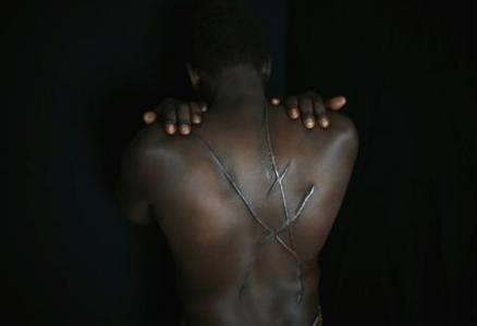 Mekki, a Sudanese migrant, shows scars on his back which he says were inflicted by Greek nationalists in Athens
